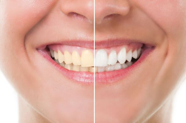 Take home teeth whitening system solutioingenieria Image collections